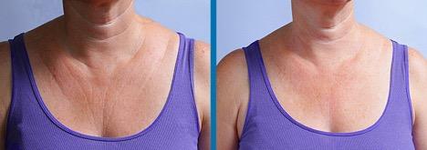 chest wrinkles