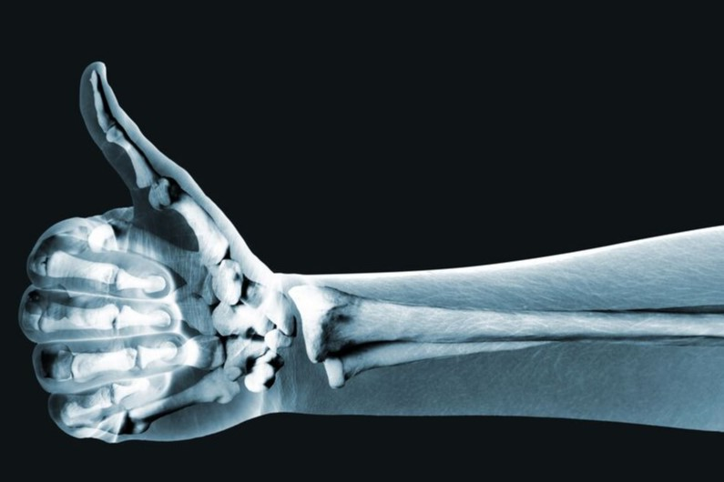 How to Improve Bone Health After Breast Cancer